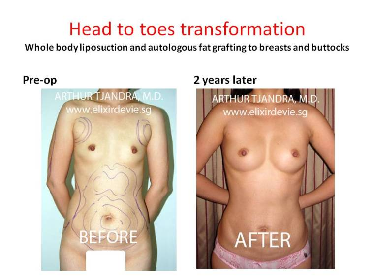 liposuctionandfattransfertobreastsandbuttocks280