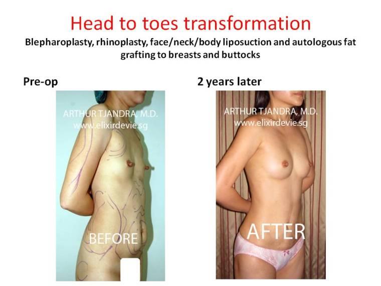 liposuctionandfattransfertobreastsandbuttocks282