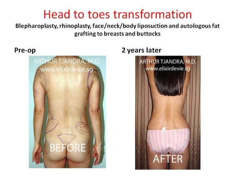 liposuctionandfattransfertobreastsandbuttocks283
